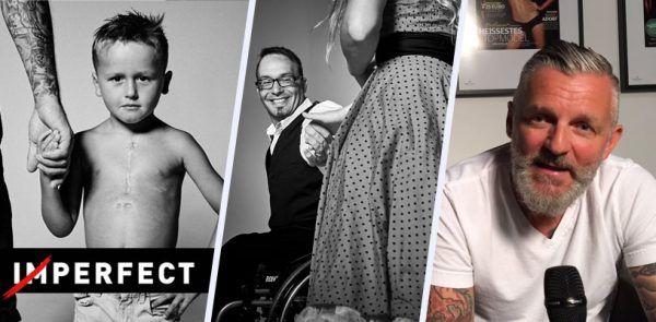 Kickstarter: Christian Holzknecht zeigt Perfektion abseits von Schönheitsidealen